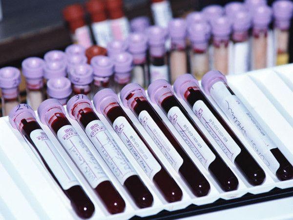 Кровь из вены на IgA