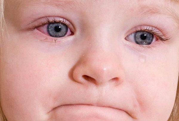 Острый конъюнктивит у детей