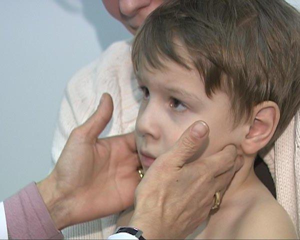 Подчелюстной лимфаденит симптомы и лечение у детей