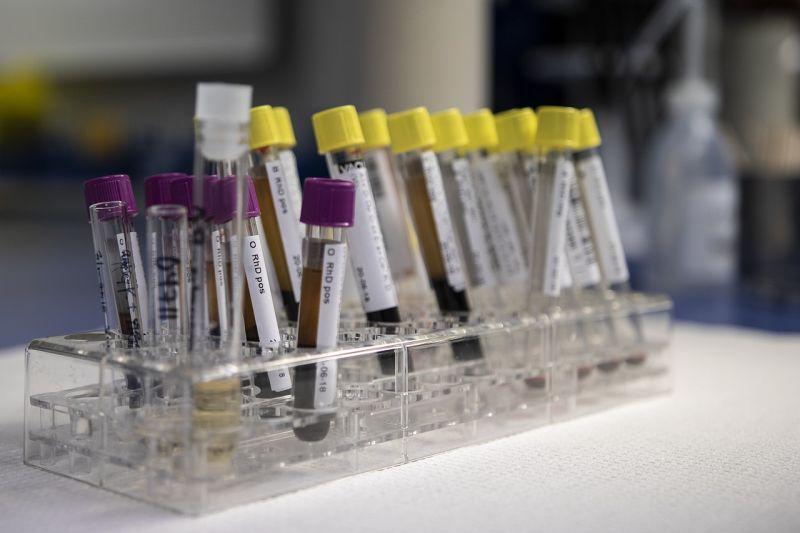 Анализ крови на высокий гемоглобин